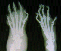 Radiograph of hind paws of rats with rheumatoid arthritis caused by an injection of Freund's adjuvant (Sigma-Aldrich, USA): it is well seen soft tissue swelling, joint space narrowing of distal phalanges, subchondral sclerosis, deformations of metatarsal bones