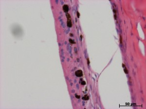 Гистологическая картина сетчатки поврежденного глаза кролика