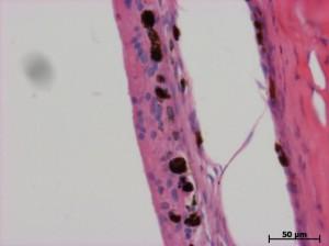 Structure of damaged eye retina of a rabbit. Histologic section. Hematoxylin and eosin staining