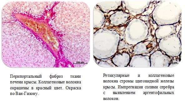 Коллагеновые волокна