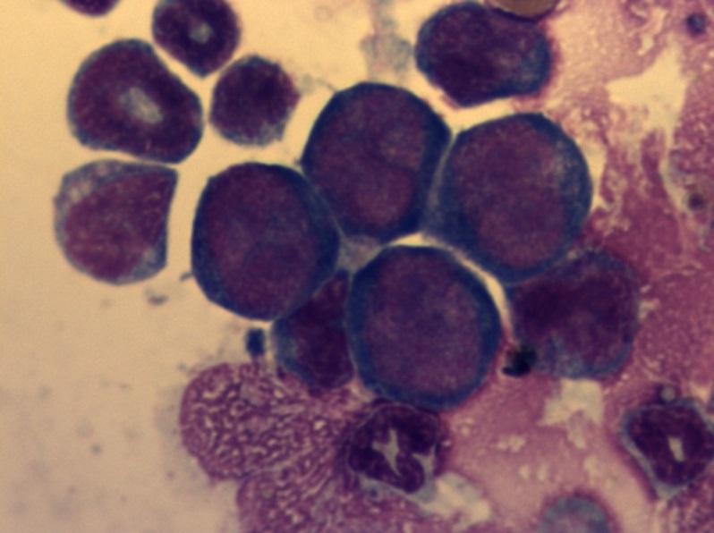 Миелограмма с лейкозом 1