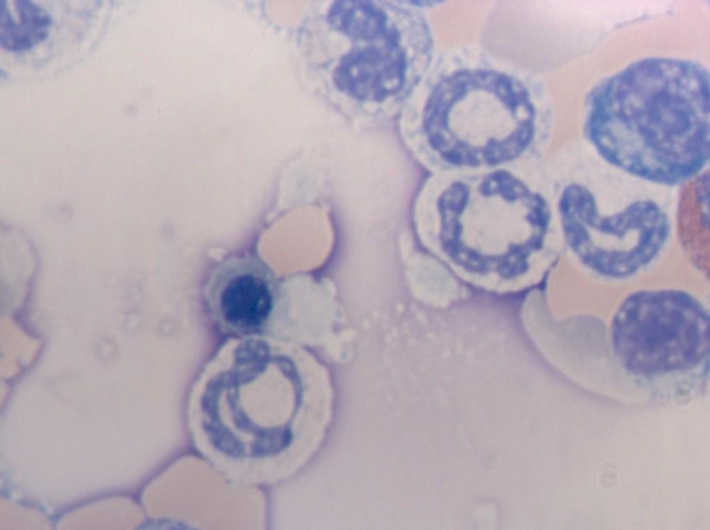 Нормоцит в мазке костного мозга крысы